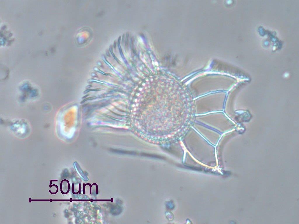 Uno de los microorganismos analizados.