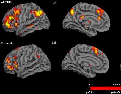 A resonancia magnética amosa a reacción do cerebro neste experimento.