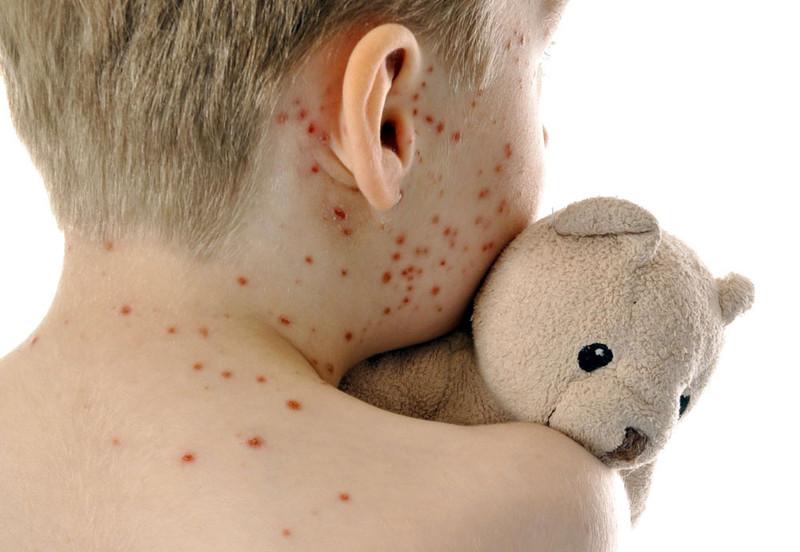 Neno con sarampelo