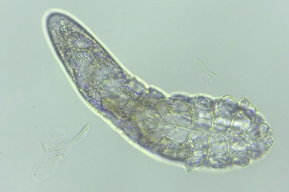 Demodex follicorum, unha das dúas especies de ácaros que viven na faciana dos humanos.