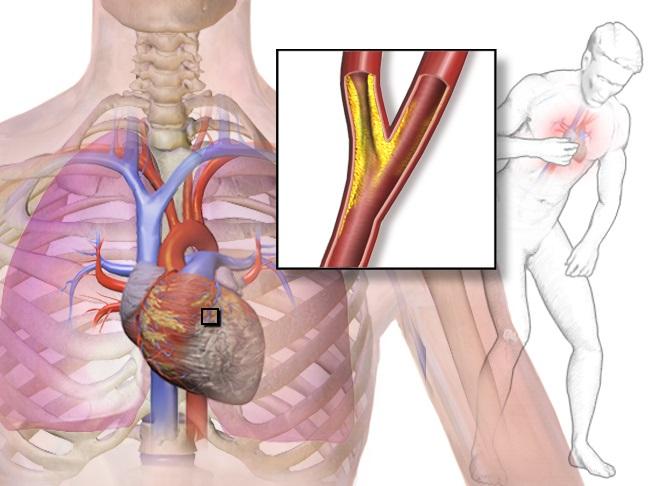 angina infarto
