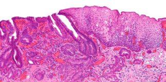 Microcarcicoma de esófago