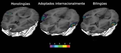 Reaccions cerebrais observadas no estudo, incluidas no artigo de PNAS.