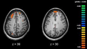 Actividade do cerebro baixo dos efectos de antipsicóticos.