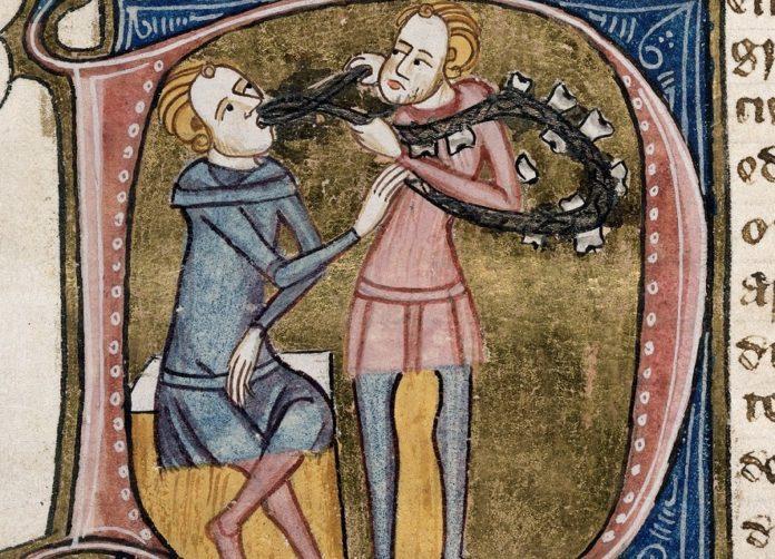 Ilustración medieval que amosa a un dentista sacando un dente con carie.