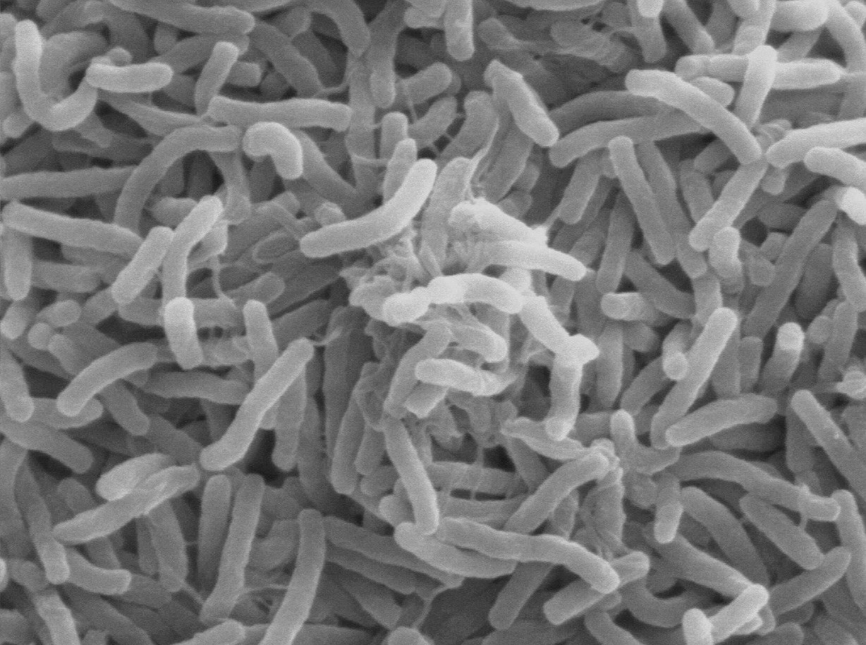 cholera_bacteria_sem-e1422403769748