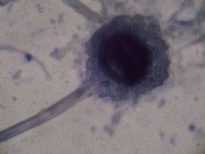 O nome do Aspergillus ven da súa semellanza cun hisopo relixioso.