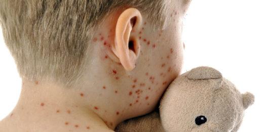Os casos de sarampelo amosan unha preocupante tendencia en Europa.