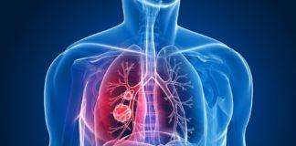 Os biomarcadores serven para a diagnose temperá do cancro de pulmón.