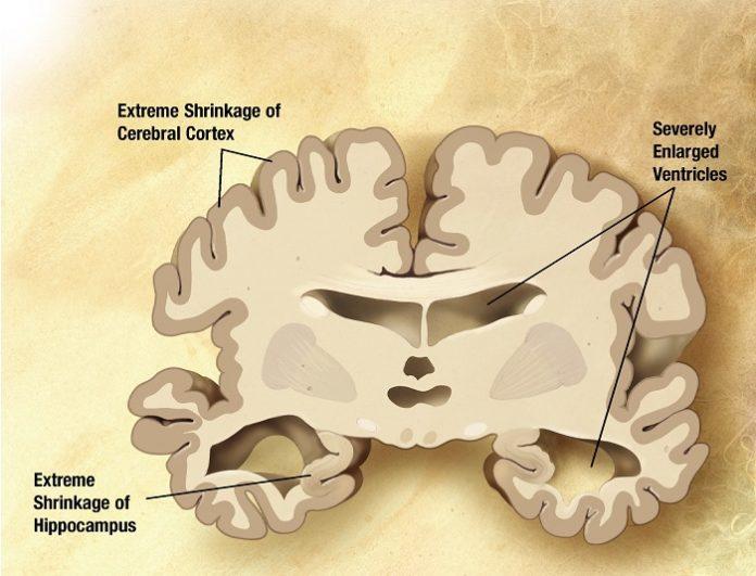 Representación dun corte cerebrral afectado por alzhéimer.