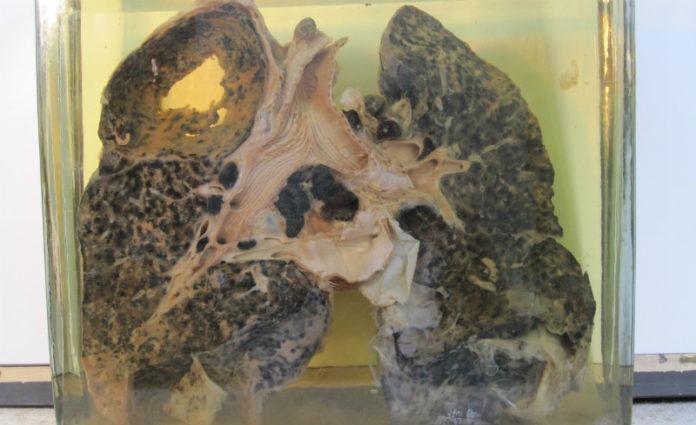 Pulmón dun mineiro afectado por silicose e tuberculose. Imaxe: Museo Vasco de Historia da Medicina e as Ciencias.