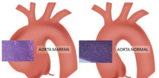 A síndrome de Marfan adoita producir ensanchamentos na aorta. Fonte: Universitat de Barcelona.