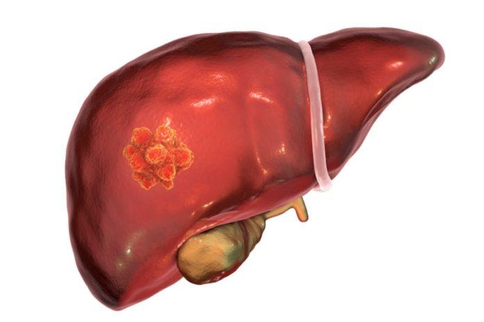 A terapia desenvolvida polos investigadores conseguíu restrinxir o crecemento de vasos sanguíneos que 'alimentan' a metástase. Imaxe: USC.