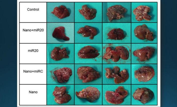 Táboa comparativa sobre a eficacia da terapia. A segunda fila amosa os fígados tratados con nanopartículas e o mir-20a, que non amosan metástase, fronte aos outros grupos estudados, nos que si se observa o avance do tumor, en forma de vultos brancos. Imaxe: USC.