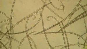 """Imaxe ao microscopio do """"Bursaphelenchus xylophilus"""". Foto: Duvi."""