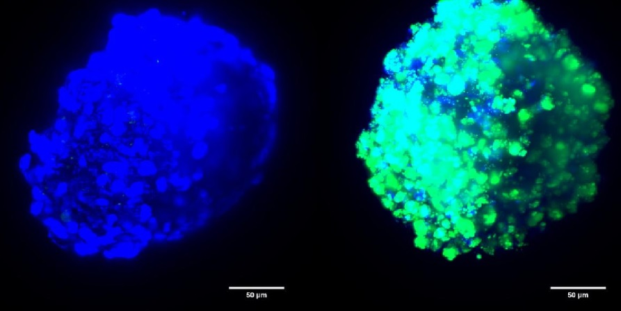 Proxección de dous tumores nas que se demostra a diferenza do impacto dos fármacos xenéticos: a fluorescencia verde da dereita (usada neste estudo) indica que houbo transferencia xenética, ao contrario que na esquerda, na que se enviou  con formulacións xa utilizadas en ensaios clínicos. Fonte: CiMUS.