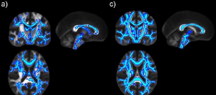 A imaxe amosa que os danos cerebrais continúan tras seis semanas sen beber alcol. Fonte: IN-CSIC.