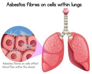 As fibras de amianto péganse as células pulmonares e poden xerar diversas enfermidades. Fonte: Shutterstock.