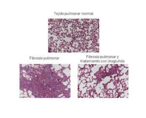 Imaxes de mostras de diferente tipo de tecido pulmonar. Fonte: Duvi.