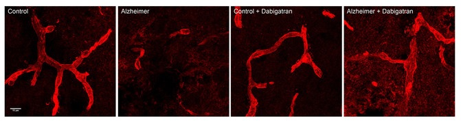 Os vasos cerebrais (vermello) están danados nos ratos con Alzheimer, pero o tratamento anticoagulante con dabigatrán prevén dito dano vascular. Fonte: CNIC