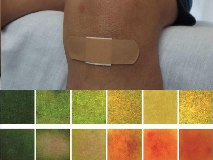 O apósito avisa en tempo real dunha posible infección bacteriana na ferida. Fonte: ACS Central Science / Pixabay.