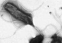 "Imaxe ao microscopio da bacteria ""Helicobacter pylori"". Fonte: Yutaka Tsutsumi."