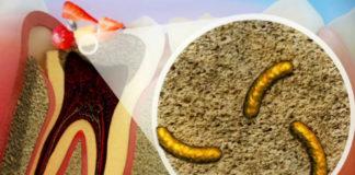A carie dental é unha enfermidade infecciosa provocada por unhas bacterias que existen na cavidade oral. Fonte: Clínica Pardiñas.