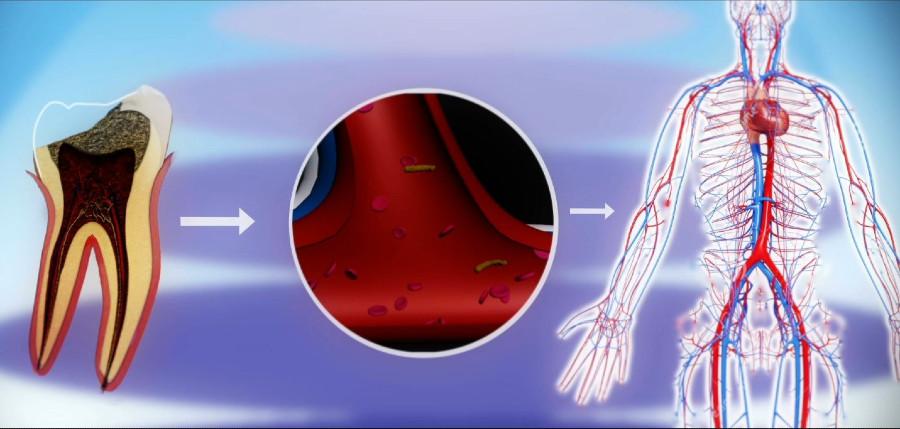 O problema da carie pode afectar a outras partes do corpo. Fonte: Clínica Pardiñas.