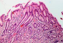 A H. pylori pode provocar úlceras e inflamacións no aparello gástrico e, nalgúns casos, induce a aparición de cancro.