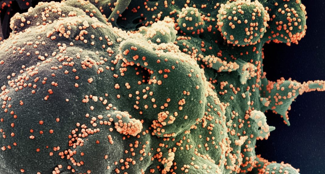 Célula infectada polo coronavirus. Imaxe: ISCIII.