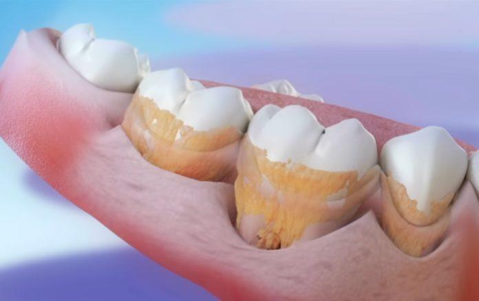 A periodontite ou piorrea é un dos problemas dentais máis frecuentes. Fonte: Clínica Pardiñas.
