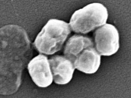 Imaxe ao microscopio electrónico da bacteria A. Baumannii. Foto: CENSE, IIS, Bangalore/ISCIII.