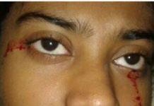 Nena de 15 anos con hemolacria, nun caso estudado en 2016 en Nova Delhi (India). Foto: BMJ Case Reports.