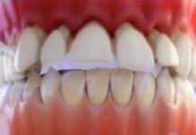O desgaste causado pola periodontite pode acabar provocando a caída dos dentes. Fonte: Clínica Pardiñas.