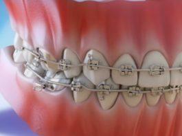 A ortodoncia é un recurso ás veces estético, pero que tamén pode previr algunhas patoloxías. Imaxe: Clínica Pardiñas.