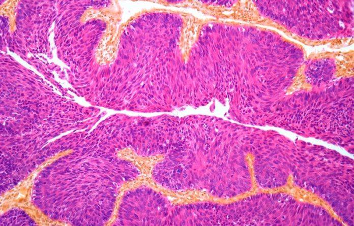 Detalle dun tumor de vexiga ao microscopio. Fonte: Steve Gschmeissner/Science Photo Library.
