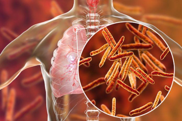 Os casos de tuberculose en Galicia descenderon de forma notable, aínda que se mantén unha das incidencias máis altas de España.