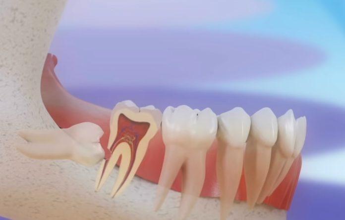 As moas do siso poden causar complicacións na dentadura ao emerxer de forma incorrecta. Fonte: Clínica Pardiñas.