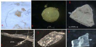 Diversos tipos de microplásticos atopados no estudo. Foto: IEO.Diversos tipos de microplásticos atopados no estudo. Foto: IEO.