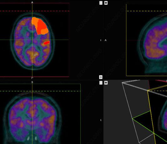 Qubiotech desenvolve unha tecnoloxía para axudar na detección temperá de doenzas neurodexenerativas. Fonte: Qubiotech.