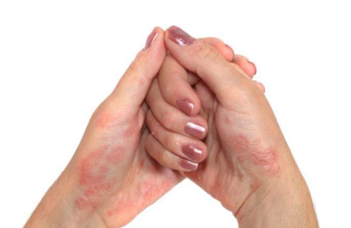 A psoríase afecta a decenas de miles de persoas en Galicia.