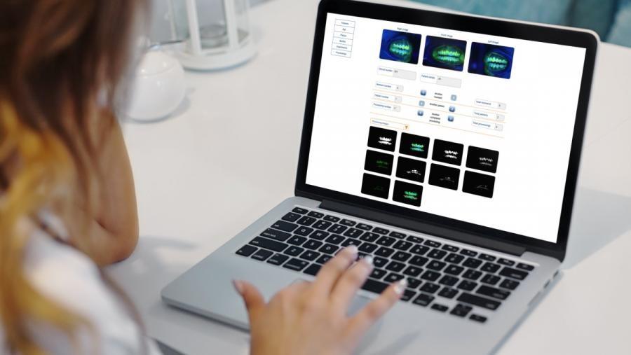 Un test realizado por profesionais da Odontoloxía expuxo DenTiUS Plaque como unha ferramenta moi útil para a cuantificación dos niveis de placa. Foto: USC.