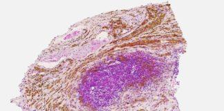 Imaxe de anatomía patolóxica que amosa a biodistribución das nanopartículas magnéticas (de cor marrón) no tumor. Fonte: Laura Asín, Valeria Grazú e Lucía Gutiérrez/CSIC.