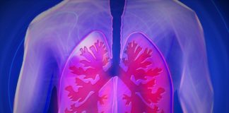 O estudo detectou tres subtipos de cancro de pulmón vinculados a persoas non fumadoras. Foto: Pixabay.