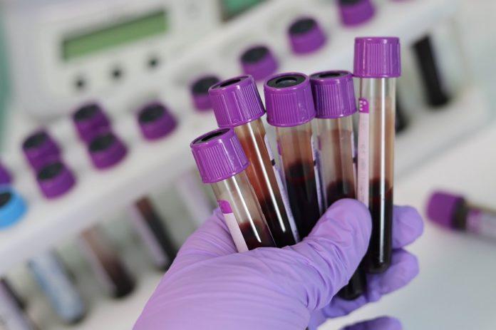 O ensaio prevé recrutar a 140.000 persoas de entre 50 e 77 anos que non tiveran cancro nos últimos tres anos, e recollerase unha mostra de sangue. Foto; Pixabay.
