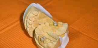 """A """"P. gingivalis"""" é un axente causante da periodontite, unha das doenzas bucais de maior prevalencia no mundo. Foto: Pixabay."""